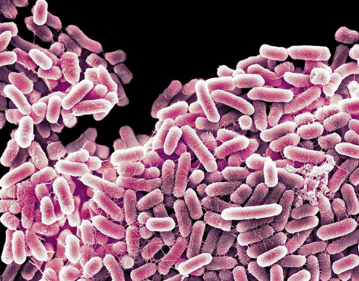 2_salmonella_bacteria__opt.jpeg